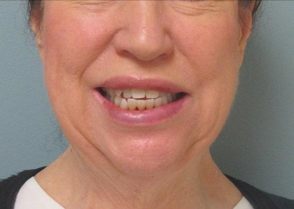 female patient before facelift -front