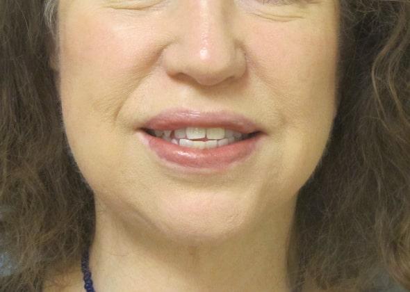 female patient after facelift - front