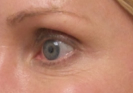 female patient after botox for crow's feet treatment