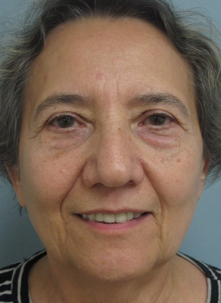 female patient before facelift - front