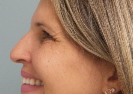female patient before botox for crow's feet treatment - left side