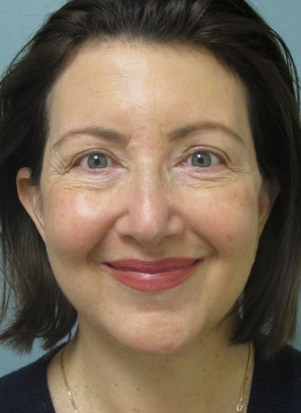 female patient after face and neck lift - front