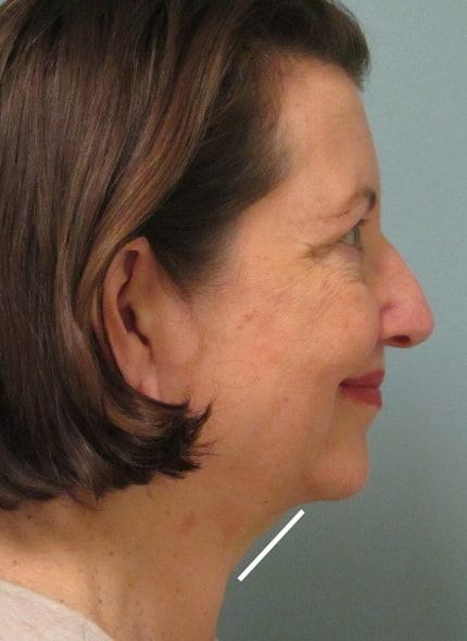 female patient before face and neck lift - right profile