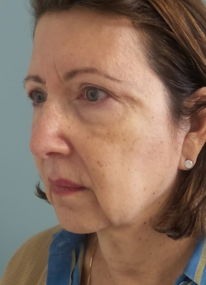 female patient before face and neck lift - left profile
