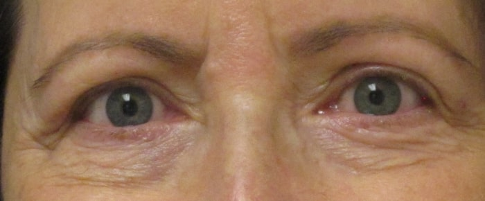 female patient before facelift - eye area