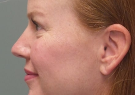 female patient before botox and facial filler treatment - left side