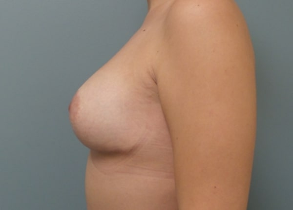 patient after breast augmentation