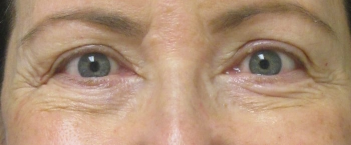 female patient after facelift - eye area