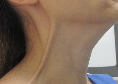 female patient after botox treatment for neck bands