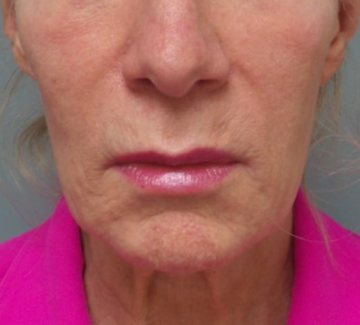 female patient before facelift