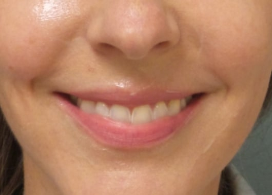 female patient before lip filler treatment - front