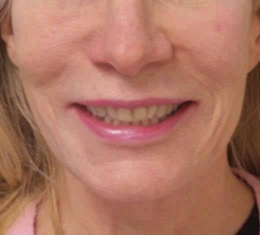 female patient after facelift
