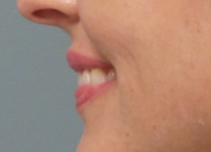 female patient after lip filler treatment - left profile