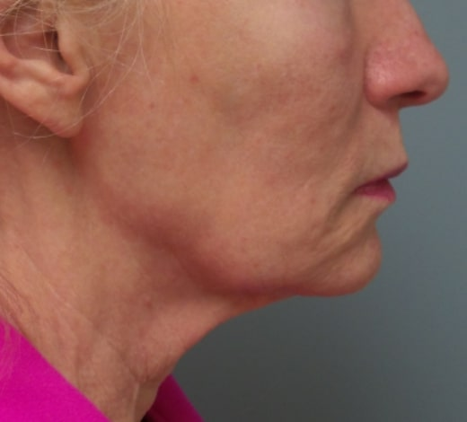 female patient before face and neck lift