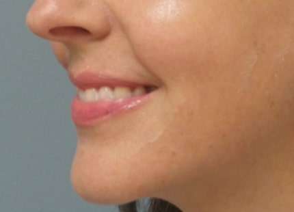 female patient before lip filler treatment - left profile