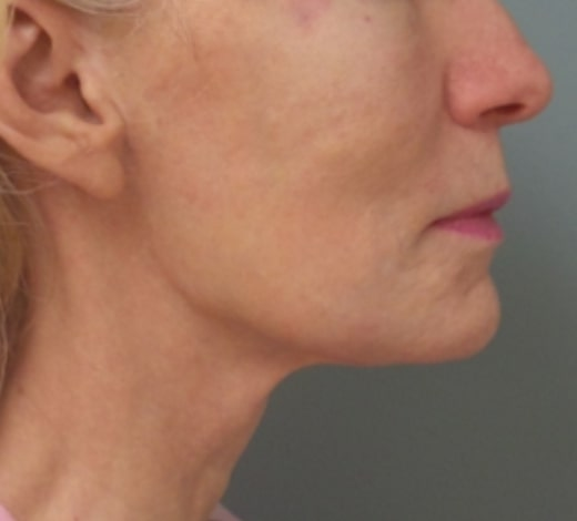 female patient after face and neck lift - right profile