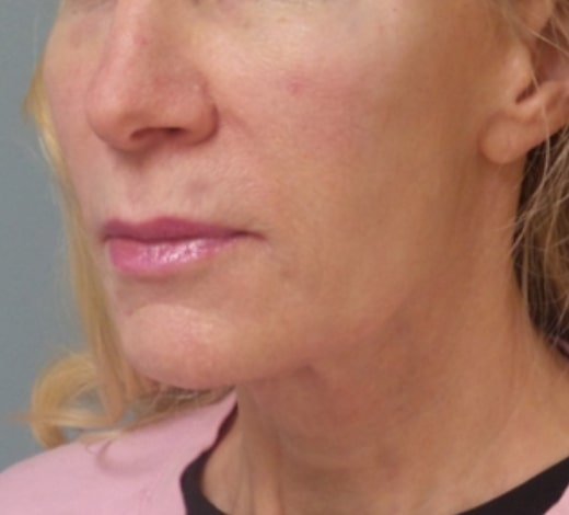 female patient after face and neck lift - left profile