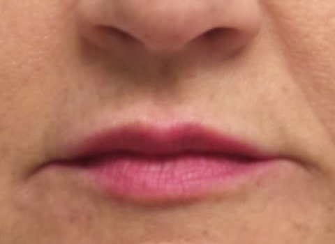 female patient after lip filler treatment - front