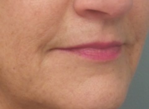 female patient before lip filler treatment - right profile