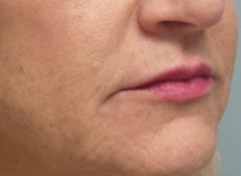 female patient after lip filler treatment - right profile