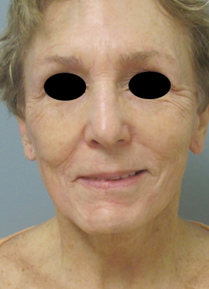 female patient after facelift - front