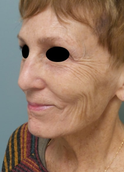 female patient before facelift - left profile