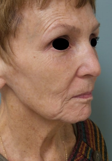 female patient before facelift - right profile