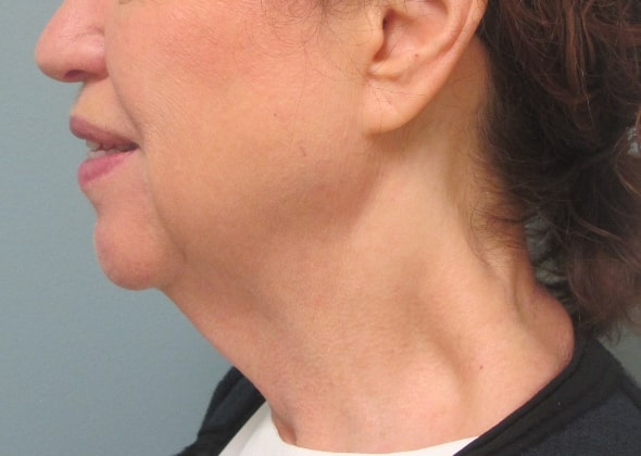 female patient before facelift -left side