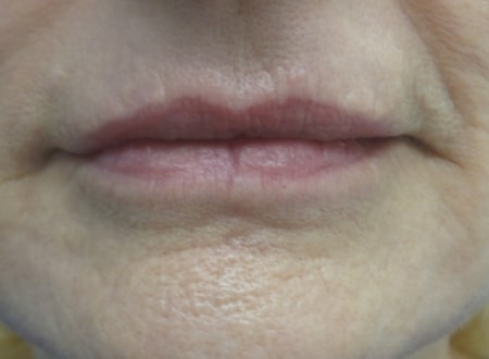 female patient after lip filler treatment