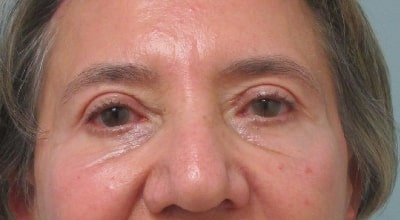 patient after upper blepharoplasty