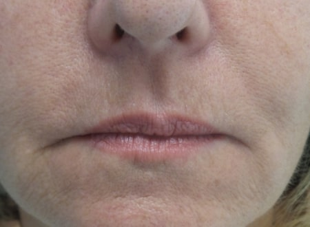 female patient before lip filler treatment