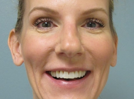 female patient after botox and facial filler treatment
