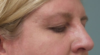 patient before upper blepharoplasty
