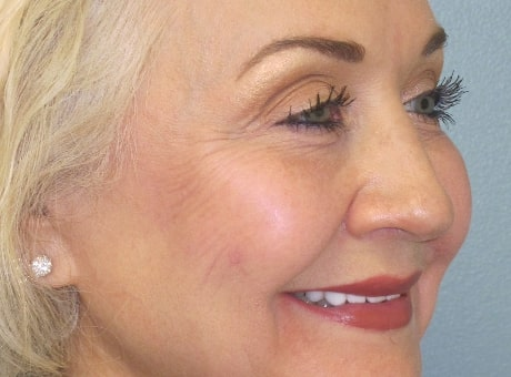 mature female patient after lip filler treatment