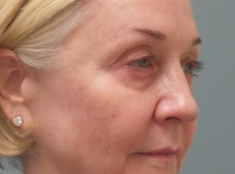 mature female patient before lip filler treatment