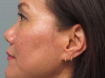female patient before botox treatment for crow's feet