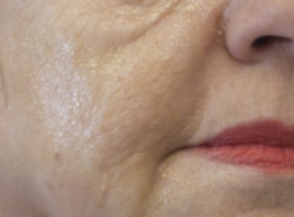 mature female patient before lip and facial filler treatment