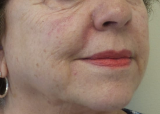 mature female patient after lip and facial filler treatment