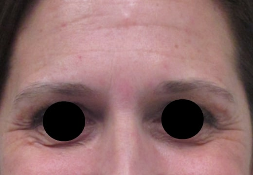 female patient before botox for crow's feet treatment - front