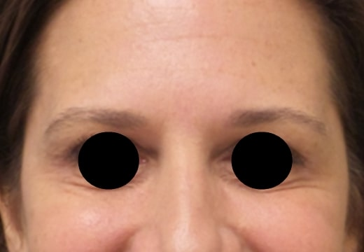 female patient after botox for crow's feet treatment - front