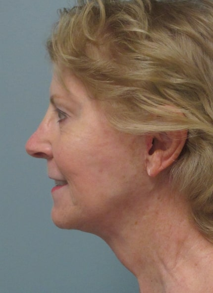 female patient after facelift - left profile
