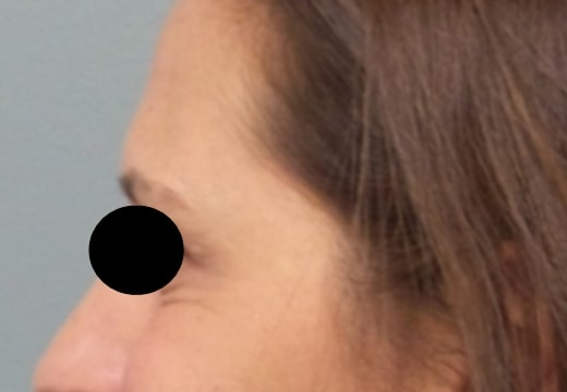 female patient after botox for crow's feet treatment - left side