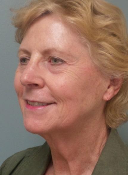 female patient before facelift - left profile