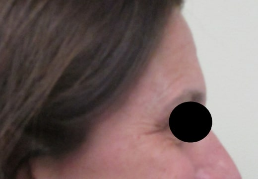 female patient before botox for crow's feet treatment - right side