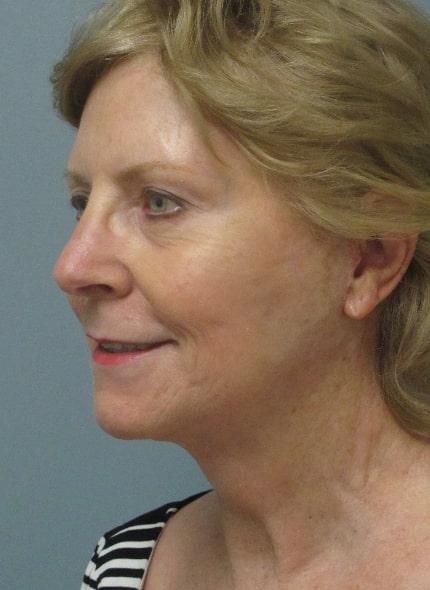 female patient after facelift - left profile