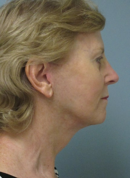 female patient after facelift - right profile