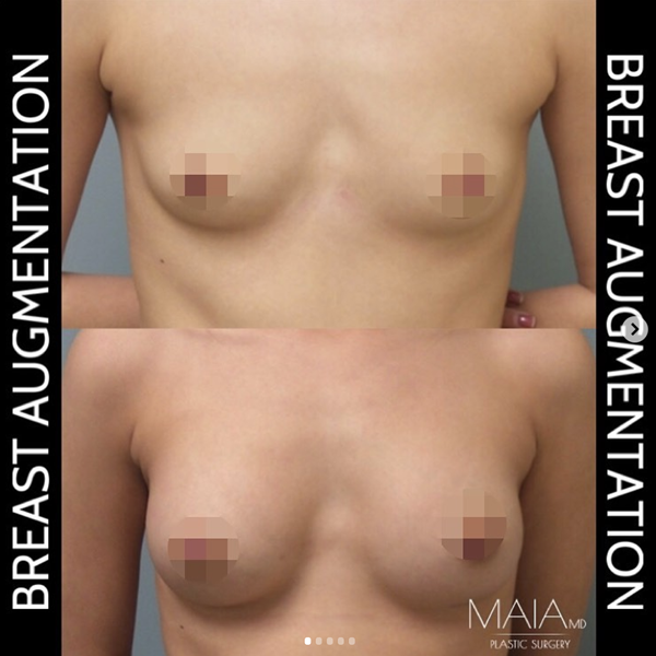 Photos before and after breast augmentation surgery