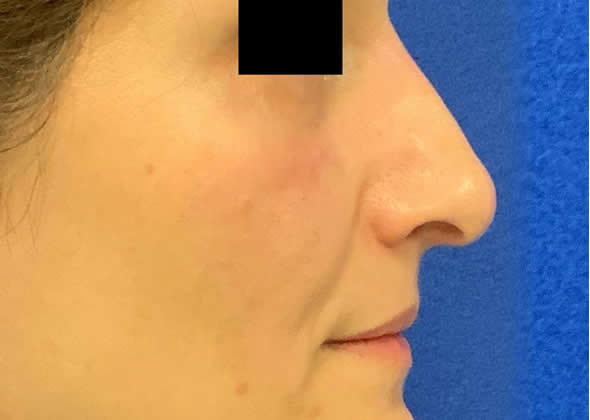 Female patient after non-surgical rhinoplasty