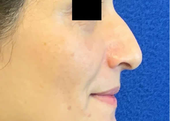 Female patient before non-surgical rhinoplasty