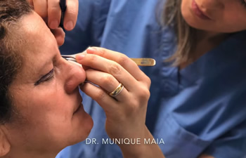 Eyelid lift/ Eyelid Surgery by Dr. Maia - Plastic Surgery in Mclean | Washington DC|